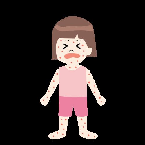 水疱瘡 イラスト 子供