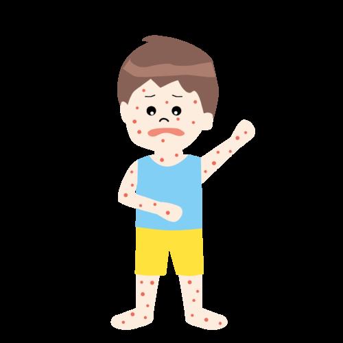 子供 発疹 イラスト