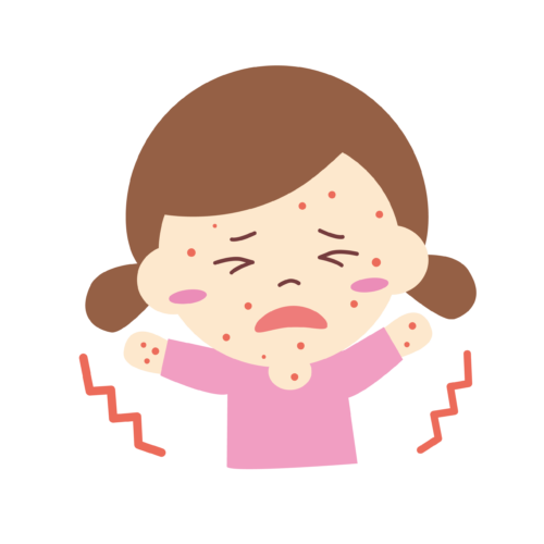 風疹 麻疹 イラスト 子供